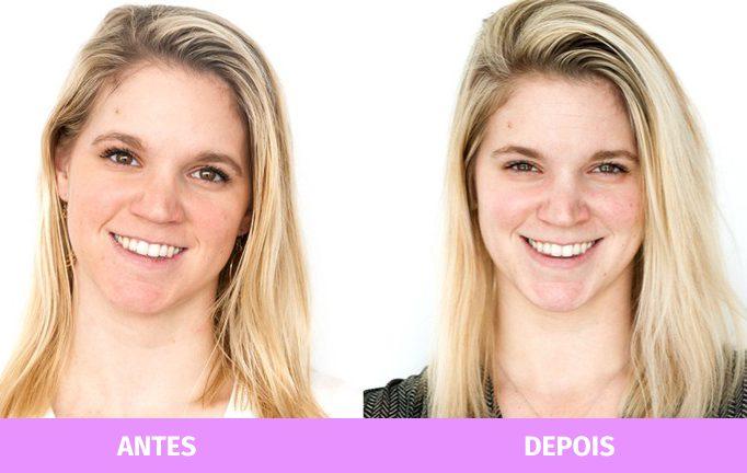antes e depois oleo de coco
