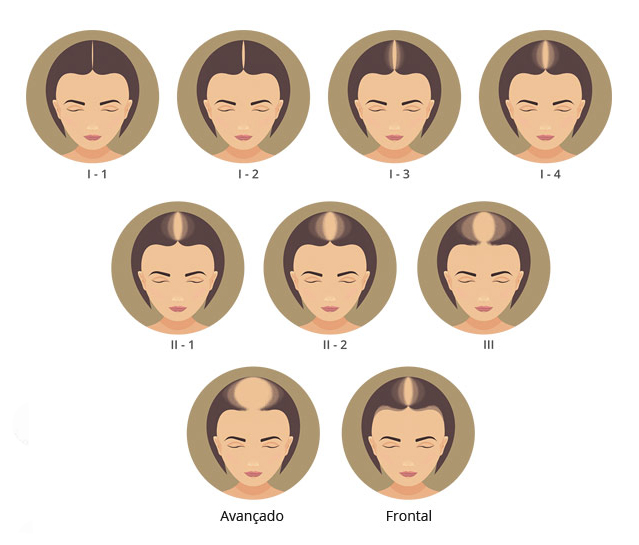 escala alopécia androgenética feminina