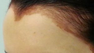 como tirar tinta de cabelo da pele