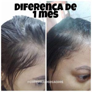 resultado do alecrim no cabelo