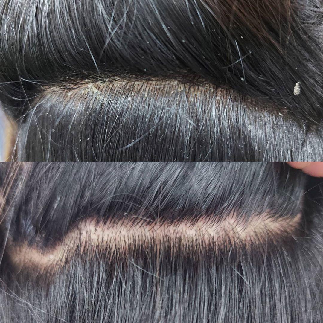 shampoo para cabelo oleoso anticaspa