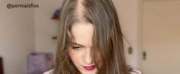 Calvície feminina: quais são as causas e o que fazer
