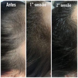 tratar calvicie feminina com minoxidil