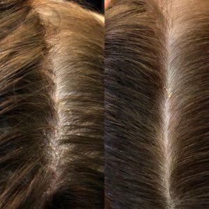 sintomas couro cabeludo sensível