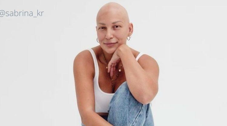 Alopecia areata e alopecia androgenética são diferentes?